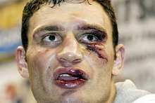 Klicsko arcát 60 öltéssel rakták össze (fotó: epa)