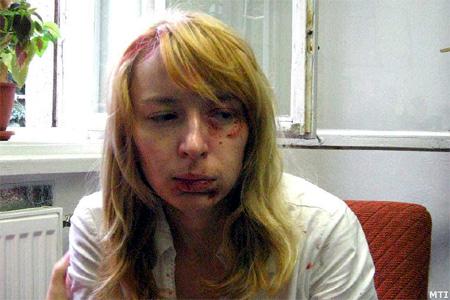 A pozsonyi Új Szó című lap felvételén MALINA Hedvig nyitrai magyar diáklány látható 2006. augusztus 25-én, közvetlenül az incidens után a nyitrai egyetemen