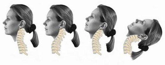 Jelentős sérüléseket okozhat a fej hirtelen elmozdulása