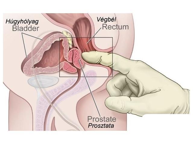 Az erekció javul a prosztata masszázs után - Mi hasznos?