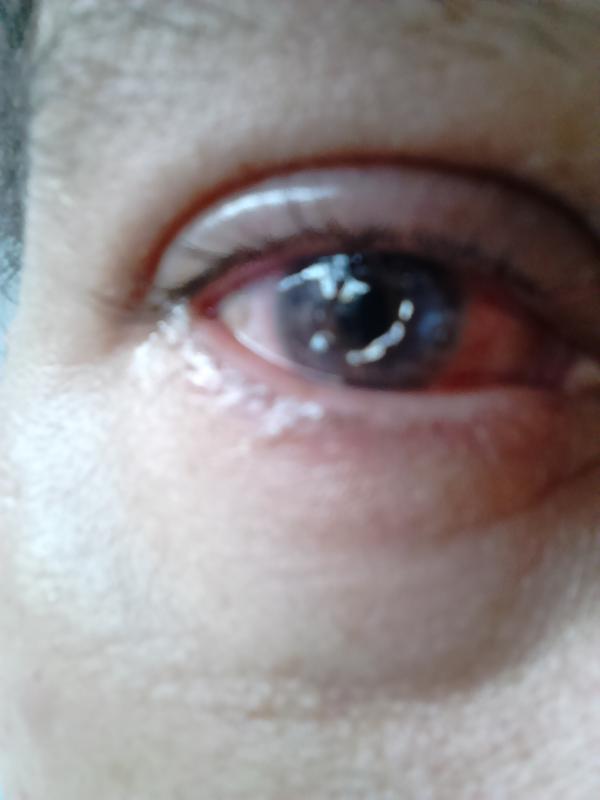 a glaukóma javította a látást tűz és látvány