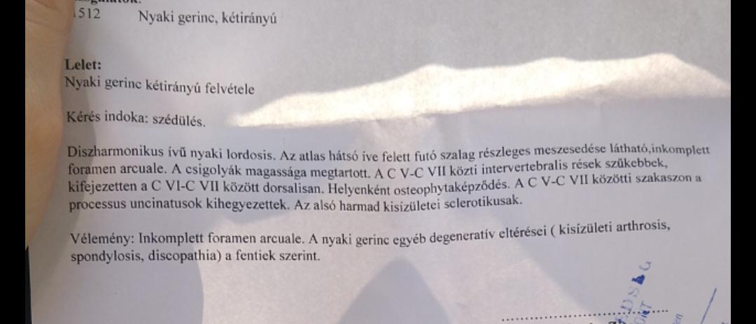 Nyaki sérv szédülés