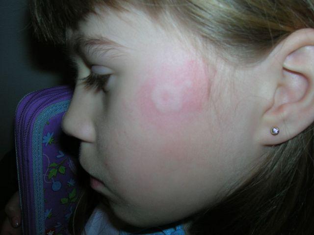 vörös foltok jelentek meg az arcon és megcsíptek)