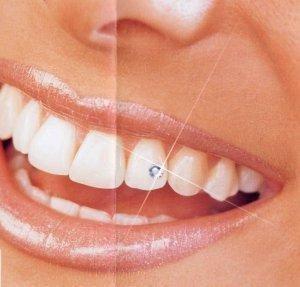 piercingek, amelyek miatt lefogy