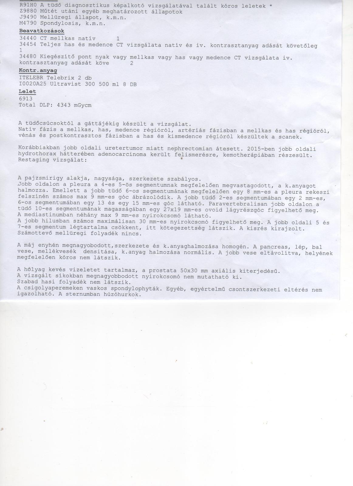 A prosztatarák malignus szintjének vizsgálata - Prosztatarák prosztata műtét