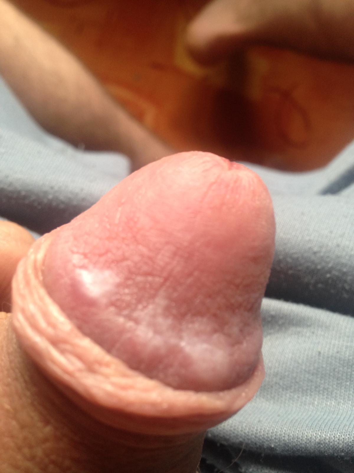 nagy pénisz glans