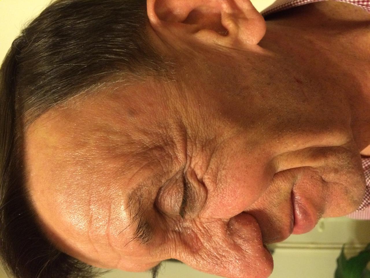 milyen kenőcsöt kell használni a fej psoriasisára vörös viszkető foltok a test hőmérsékletén