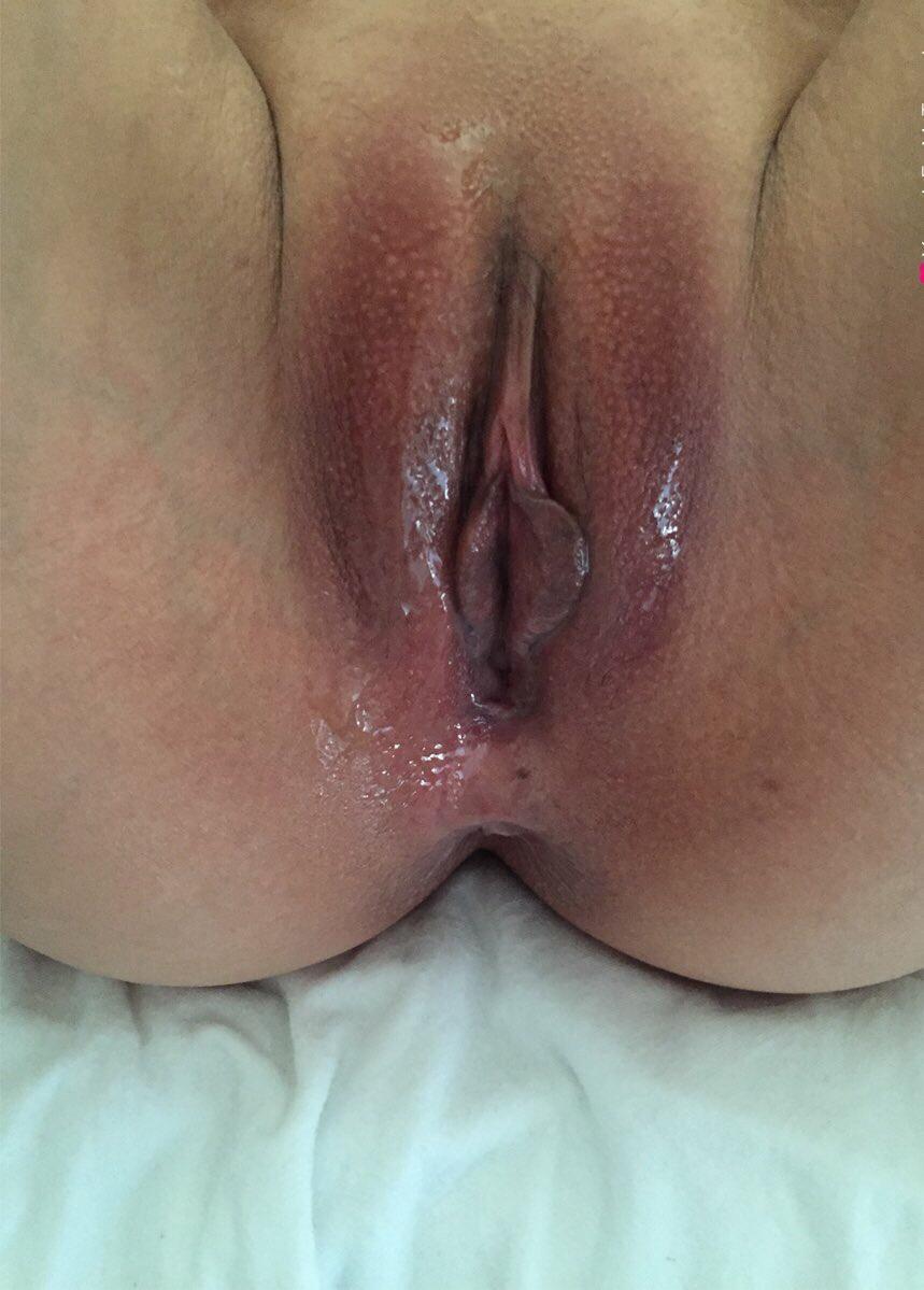 Az anális szex szaga