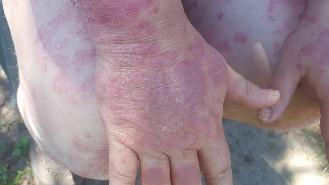 pikkelysömör gyógyszereinek tesztelése a mellkason és a hátán vörös foltok viszketnek